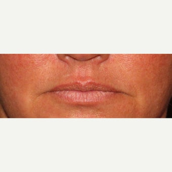 Juvederm before 1902044
