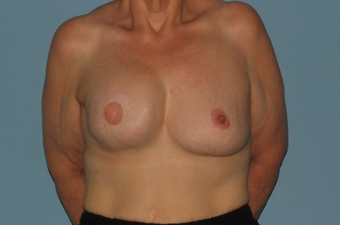 This Breast Reconstruction patient had reconstruction on the right breast and reduction on the left. after 963248