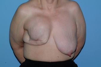 This Breast Reconstruction patient had reconstruction on the right breast and reduction on the left. before 963248