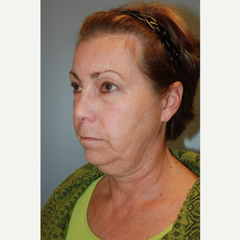 55-64 year old woman treated with Facelift before 3684765