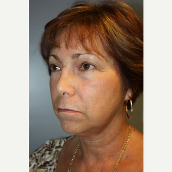 55-64 year old woman treated with Facelift after 3684765