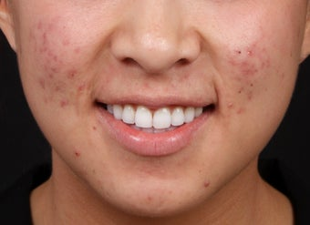Laser Treatments for Red Acne Scarring