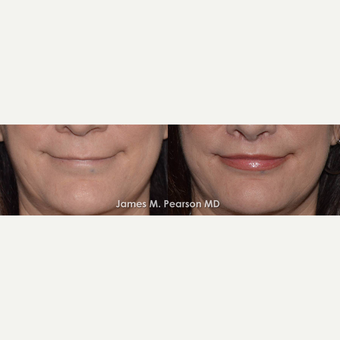 45-54 year old woman treated with Lip Lift before 3117335