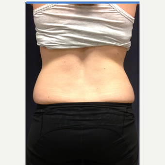 25-34 year old woman treated with SculpSure before 3168618