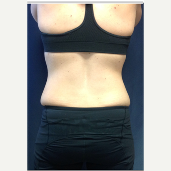 25-34 year old woman treated with SculpSure after 3168618