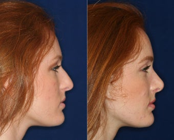 Nose Surgery before 1430626