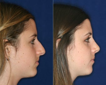 Nose Surgery before 1430629