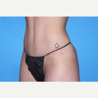 25-34 year old woman treated with Tummy Tuck after 3741580