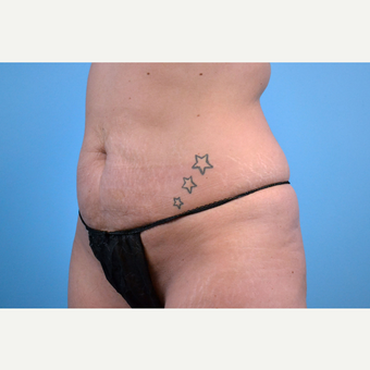 25-34 year old woman treated with Tummy Tuck before 3741580
