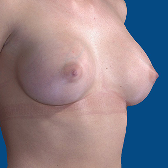 18-24 year old woman treated with Breast Augmentation after 3644399