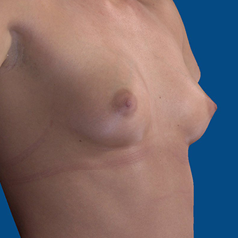 18-24 year old woman treated with Breast Augmentation before 3644399