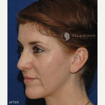 35-44 year old woman treated with Forehead Reduction after 2292348