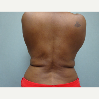 35-44 year old woman treated with Liposuction after 3823393