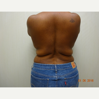 35-44 year old woman treated with Liposuction before 3823393