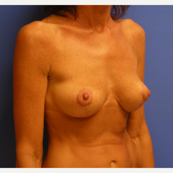 Active woman treated with Breast Lift after 3482686