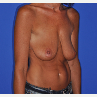 Active woman treated with Breast Lift before 3482686