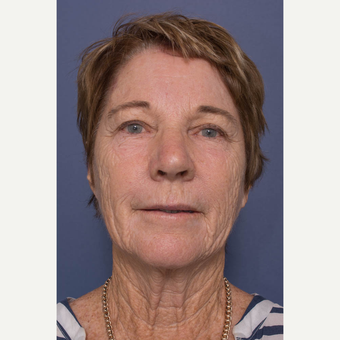 65-74 year old woman treated with Facelift before 3739352