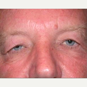Man treated with Eyelid Surgery before 1585492