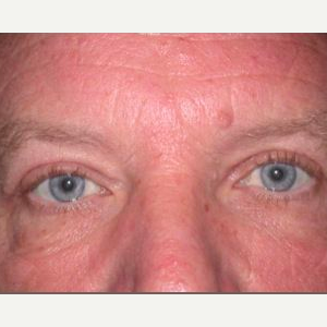 Man treated with Eyelid Surgery after 1585492