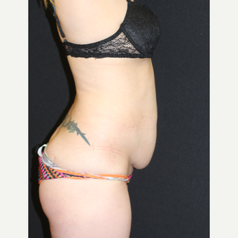 37  year old woman treated with Tummy Tuck before 3076621
