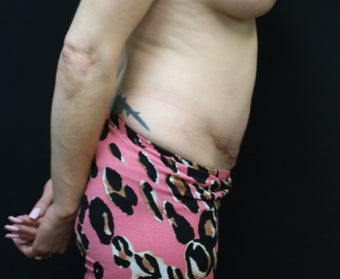 37  year old woman treated with Tummy Tuck after 3076621