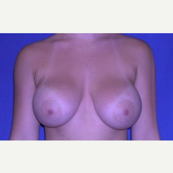 18-24 year old woman treated with Breast Augmentation after 3220047