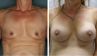 45-54 year old woman treated with Breast Augmentation before 3052709