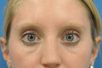 Lower Blepharoplasty at young age -fat pad removal only (eye bags) before 1102682