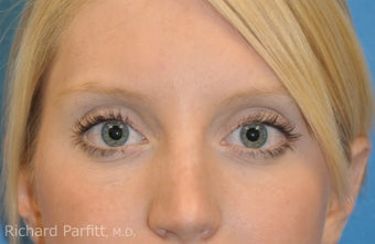 Lower Blepharoplasty at young age -fat pad removal only (eye bags) after 1102682