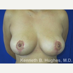 Breast Lift after 3055039