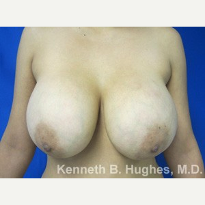 Breast Lift before 3055039