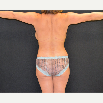 Liposculpture of the back, posterior flanks and lateral chest wall after 3742159