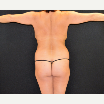 Liposculpture of the back, posterior flanks and lateral chest wall before 3742159