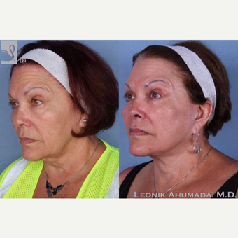 55-64 year old woman treated with Facelift 3094205