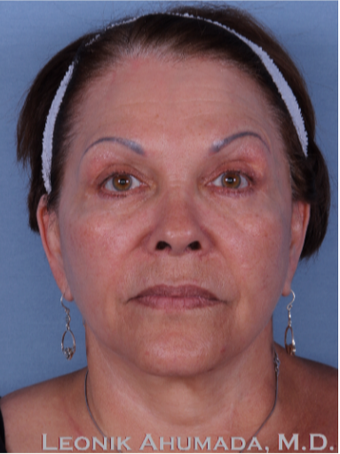 55-64 year old woman treated with Facelift after 3094205