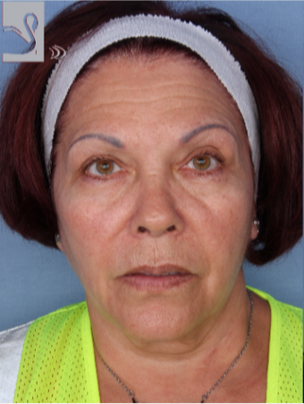 55-64 year old woman treated with Facelift before 3094205