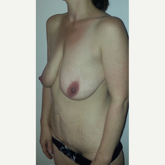 35-44 year old woman treated with Mommy Makeover before 3553033