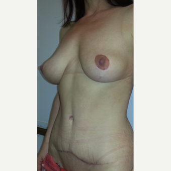 35-44 year old woman treated with Mommy Makeover after 3553033