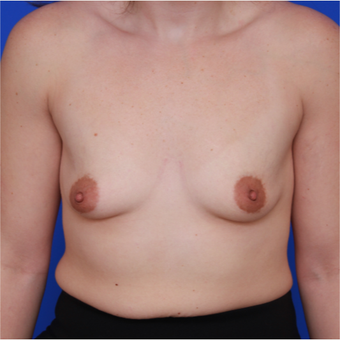 26- year old woman treated with Breast Augmentation before 3644045
