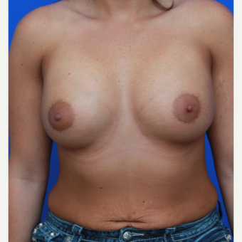 26- year old woman treated with Breast Augmentation after 3644045