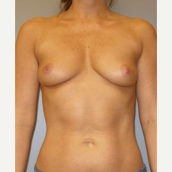 25-34 year old woman treated with Breast Implants before 3122330