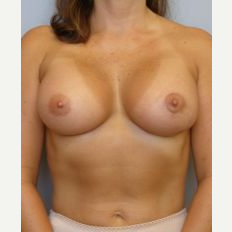 25-34 year old woman treated with Breast Implants after 3122330