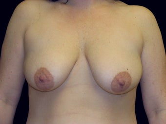 Breast Lift with Short Vertical Scar before 1050375