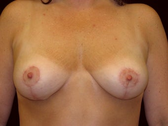 Breast Lift with Short Vertical Scar after 1050375