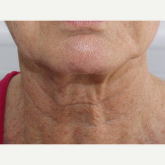 55-64 year old woman treated with Neck Lift before 2077183