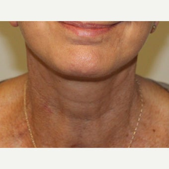 55-64 year old woman treated with Neck Lift after 2077183