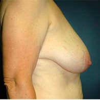 61 year old woman treated with Breast Lift before 3665884
