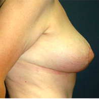 61 year old woman treated with Breast Lift after 3665884
