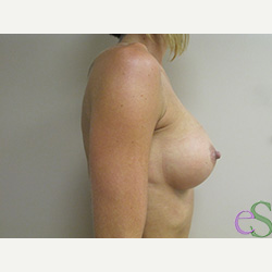 Breast Implants after 3373660