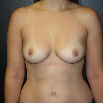 25-34 year old woman treated with Breast Augmentation before 3033197